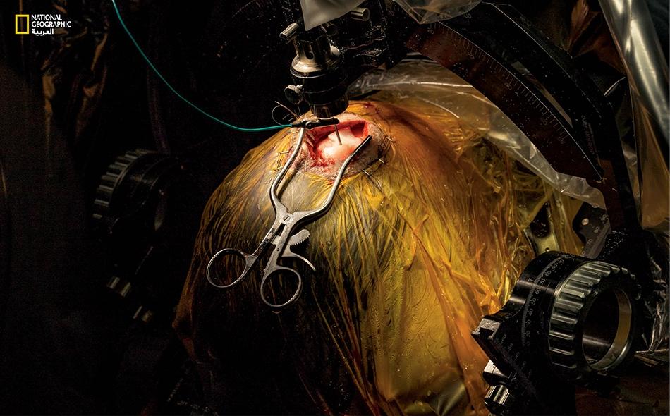 """فيما يظلّ """"راسل برايس"""" مستيقظاً، يُدخل الأطباء في جمجمته سلكاً كهربائياً دقيقاً سيُجري تحفيزاً عميقاً للمواضع الدماغية التي يسبّب مرض باركنسون فيها أعراضاً موهِنة للعزيمة، مثل الرعشات والتّيبس وفقدان التوازن والحركة المتباطئة."""