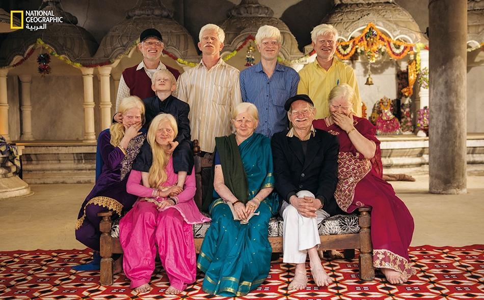 """ثلاثة أجيال من عائلة مُصابة بالمَهق تلتقط صورة جماعية نادرة في معبد هندوسي في مدينة """"دلهي"""" بالهند. حين يتزوج شخصان أمهقان (والمَهق سِمة وراثية متنحية) فإنهما ينجبان أطفالا مُهقا."""