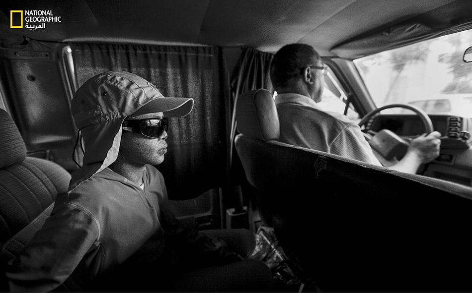 تجلس أماني (عشر سنوات) في طريق عودتها من زيارة إلى المستشفى، في المقعد الخلفي لسيارة مُعتمة جيداً باستثناء الزجاج الأمامي. رغم ذلك، تبقى النظارات ضرورية لحماية عينيها من وهج أشعة الشمس.