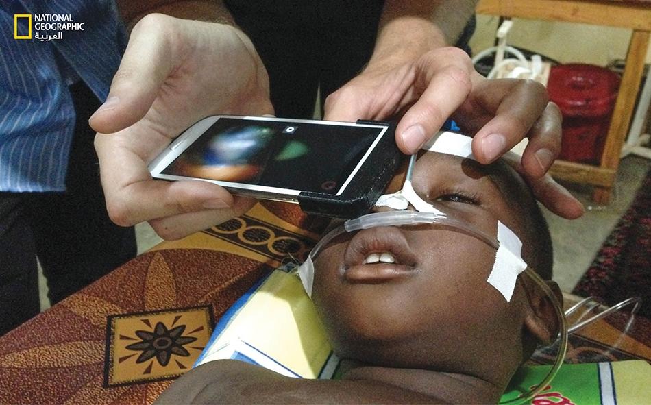 """طبيب يستخدم أداة """"بيك"""" لتحديد إمكانية اعتلال الشبكية الملارية على طفل في مالي، تمهيداً لتحديد العلاج المناسب."""