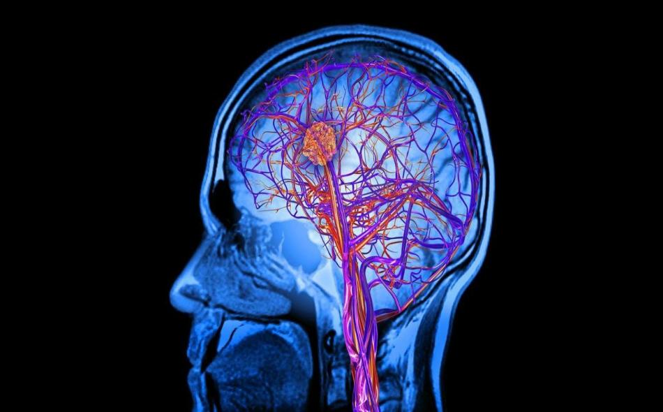يعتقد العلماء أن هذه الحالة قد تكون ناجمة عن أن بعض الأعصاب لا تعمل بشكل جيد. الصورة: BBC