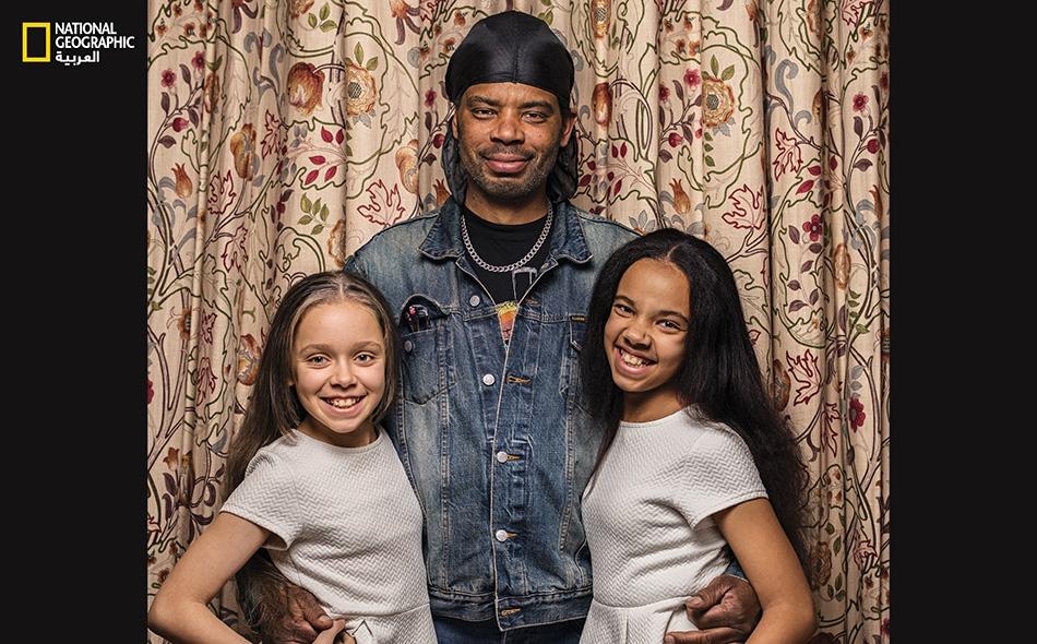 """يرى """"مايكل بيغز"""" تشابهاً عائلياً واضحاً بين ابنتيه التوأم، مارسيا (يسار) وميلي. يقول: """"لقد اكتسبتا معاً شكل أنفي""""."""