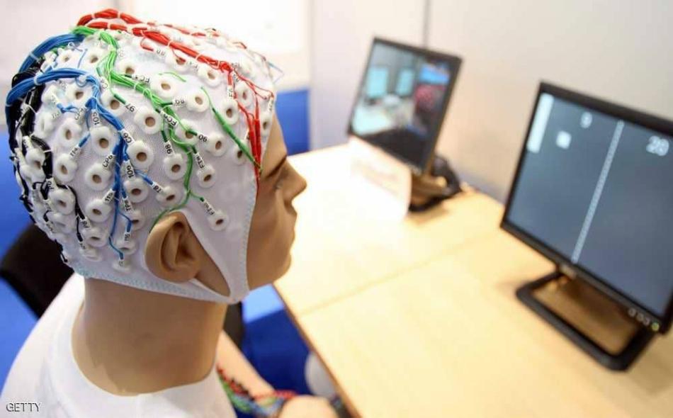 """وصف موقع """"ساينس أليرت"""" الخلية بـ """"غير العادية""""، وقال إنه تم اكتشافها بعد أبحاث طويلة ومعمقة على أنسجة المخ عند الإنسان، مضيفا أن شخصين بالغين ساهما في البحث بعدما تبرعا بأنسجة مخيهما."""