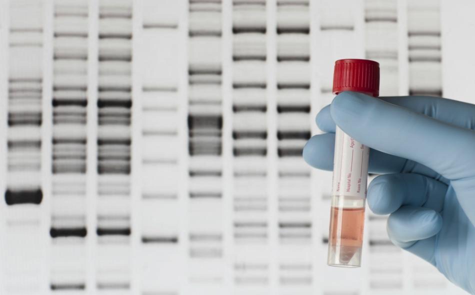 التقدم العلمي الحاصل في فحص الجينات، أصبح يمكن من خلاله معرفة احتمالية إصابة الشخص بالسرطان من عدمه، وذلك عن طريق التعرف على الطفرات الجينية. الصورة: Getty Images