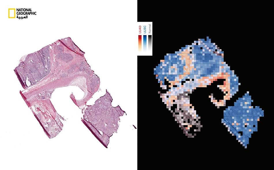تُعد الدقة في تحديد الخلايا السرطانية في عيّنة من نسيج الرئة (يمين) مفتاحا لنجاح العلاج؛ وذلكم استعمال آخر للتشخيص المثالي القائم على الذكاء الصناعي. أثبتت إحدى الدراسات إمكانية تطويع تقنية التعرف إلى الأشياء -والتي يستعملها محرك البحث غوغل- لتحديد...