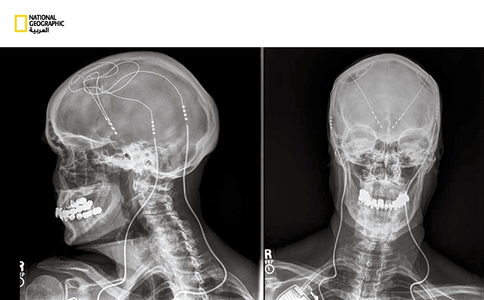"""استُعملت الكهرباء وسيلةَ علاج منذ ظهور أول مُنظِّم لنبض القلب. تُصدر الأقطاب المزروعة في الدماغ -الظاهرة في صورة الأشعة السينية- نبضات كهربائية تعرف باسم """"تحفيز الدماغ العميق"""". ولقد نجحت """"مُنظِّماتُ نبض الدماغ"""" هذه في علاج أمراض كالوسواس القهري..."""