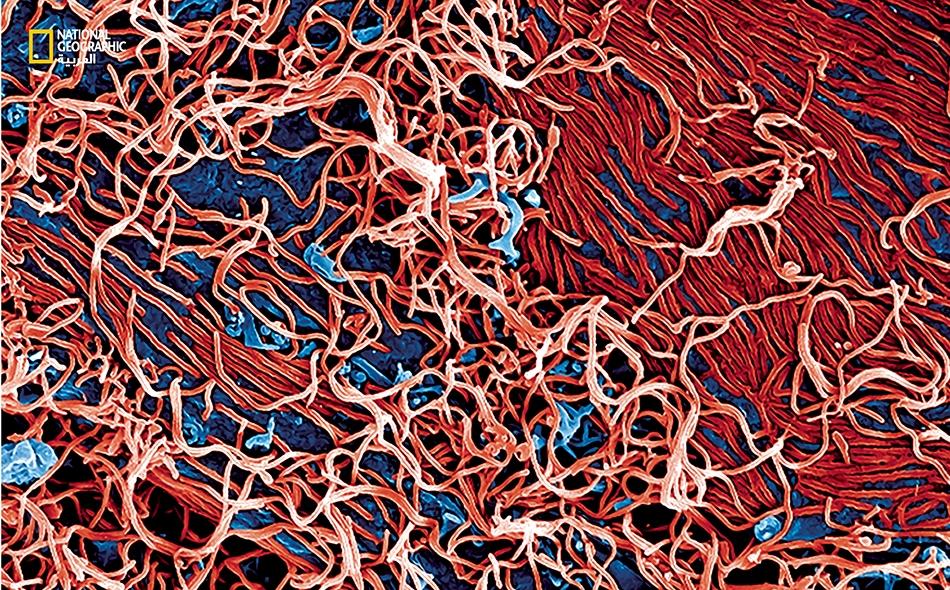 أربعة أسباب لتفوق إيبولا على العلم