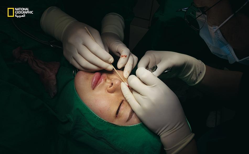 """تخضع """"هايجين يون"""" لعملية جراحية على الجفون لدى """"عيادة هيونداي للتجميل"""" في سيول. تصير العيون أكبر بفضل هذه العملية. تسجل كوريا الجنوبية أحد أعلى معدلات الجراحات التجميلية في العالم، إذ تُجري امرأةٌ واحدة من بين كل ثلاث نساء تتراوح أعمارهن بين 19 و 29..."""