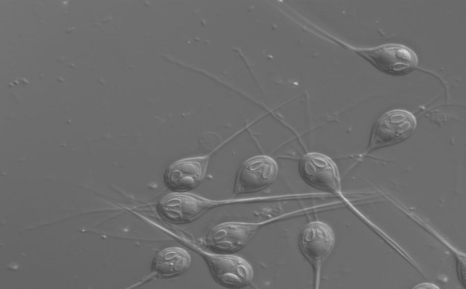 أعلن فريق دولي من العلماء عن اكتشاف حيوان مجهري لا يحتوي على الحمض النووي للميتوكوندريا، مما يعني أنه لا يحتاج إلى التنفس من أجل البقاء على قيد الحياة. الصورة: Stephen Douglas Atkinson