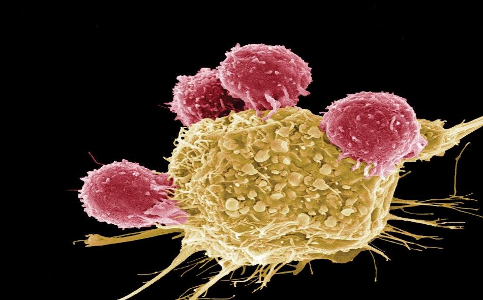 """درس الباحثون سرطان الغدد الليمفاوية من نوع """"لاهودجكينية""""، وهو نوع خطير من السرطان يبدأ في العقد اللمفاوية. ووجد الفريق أن بروتينا يسمى """"كاتيبسين S"""" تم تحويره وزيادة نشاطه في أجسام عدد من المرضى. ويقوم هذا البروتين بتقطيع البروتينات الأخرى إلى أجزاء..."""