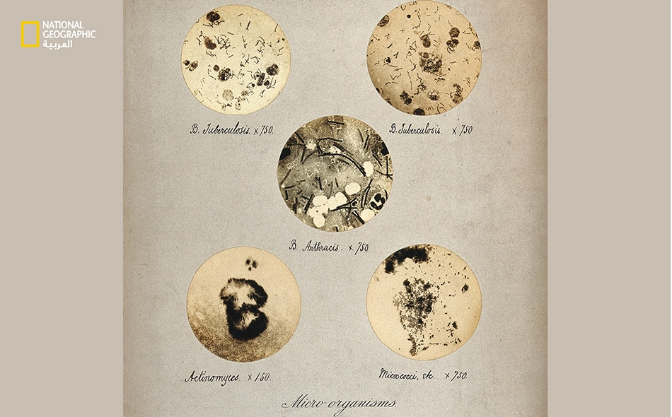 """في أواخر القرن التاسع عشر، استعمل المصوّر """"آندرو بـرينغل"""" مجهرًا لالتقاط صور لبكتيريا السل والجمرة الخبيثة وغيرهما من الأمراض."""