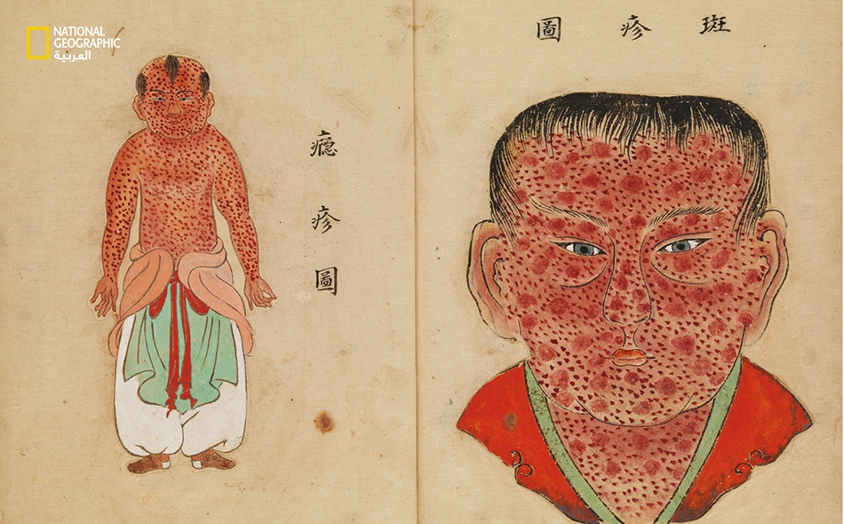 """يوجد هذا الرسم ضمن وثيقة يابانية تحمل عنوان """"أساسيّات الجدري"""" وقد نُشرت عام 1720 على وجه التقريب. يُظهر الرسمُ الطفحَ الجلدي الذي ينّم عن الإصابة بالجدري. وما زالت أصول فيروس الجدري مجهولة، ولكن يُعتقَد أن المصريين كانوا قد أصيبوا به قبل أكثر من 3000..."""